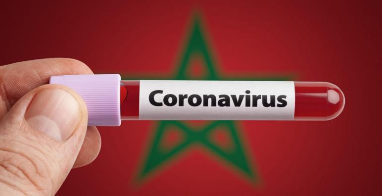 وزارة الصحة تعلن تسجيل 1306 إصابة مؤكدة بفيروس كورونا خلال 24 ساعة الأخيرة